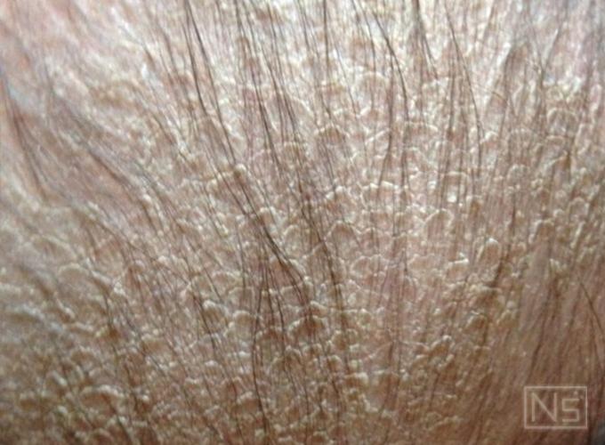 頭皮の症状の例
